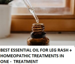 BEST ESSENTIAL OIL FOR LEG RASH