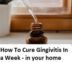 How To Cure Gingivitis In a Week