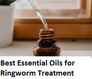 Best Essential Oils for Ringworm